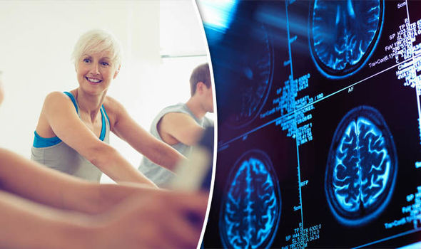 Healthy lifestyle and exercise key to staving off alzheimers, study finds