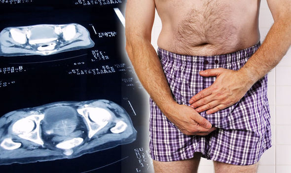 Prostate cancer symptoms: Do you have the signs? How to check and when to get the test