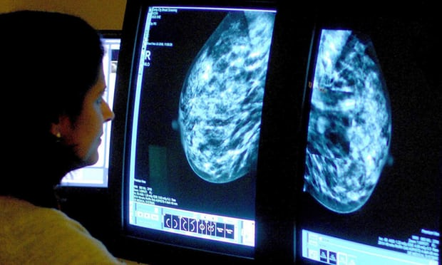 Thousands of breast cancer patients could avoid chemo, study finds