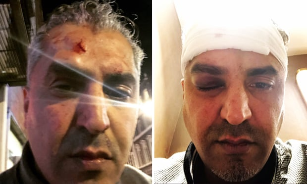Maajid Nawaz, LBC presenter, hurt in racially motivated attack