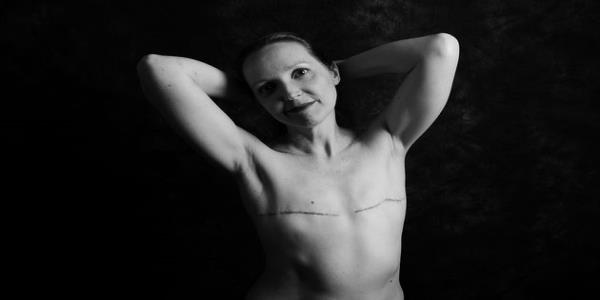 16 People Bare Their Cancer Scars In Candid Portraits: This Disease Won't Define Me